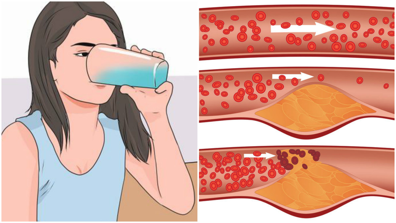 Խմեք ՍԱ և տեսեք, թե ինչպես են արյունատար անոթներն ակնթարթորեն մաքրվում խոլեստերինից