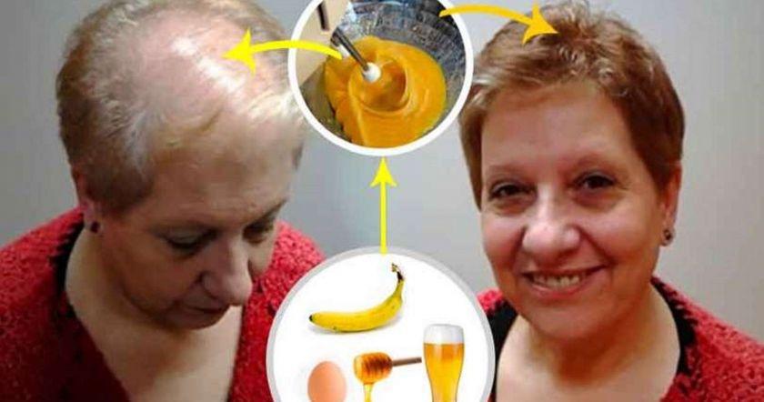 Բժիշկները ցնցված են մազերի աճի համար այս անհավանական բաղադրատոմսից