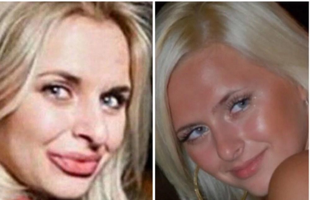 Հետապնդելով գեղեցկությունը։ Կանայք, որոնք պլաստիկ վիրահատությունների չափն անցել են։