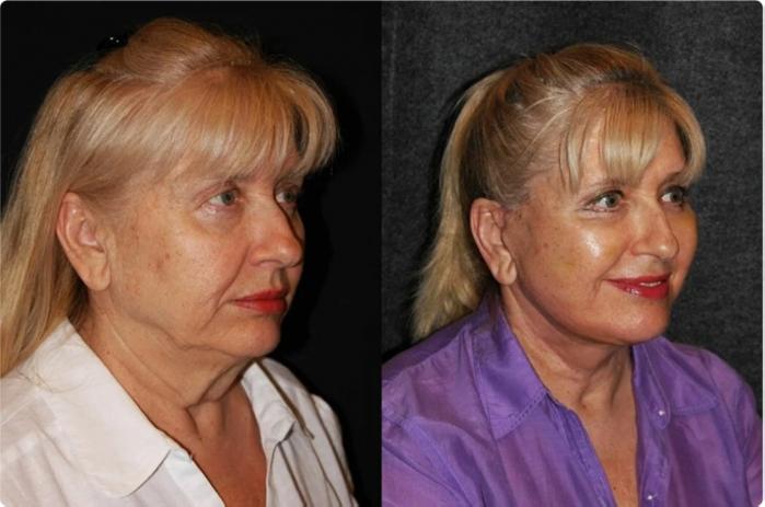 Սովորական կանանց վերափոխում՝ դեմքի պլաստիկայից հետո